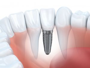 Dental implants replicate natural teeth and are virtually indistinguishable in both their look and feel.